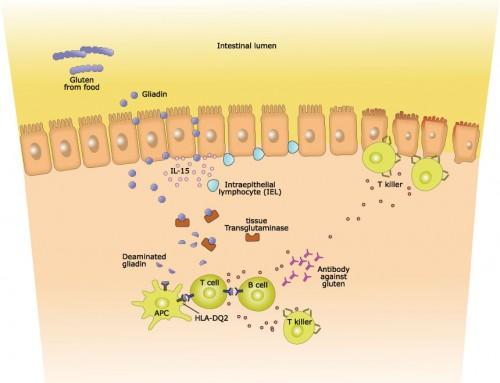 How is Celiac Disease diagnosed?