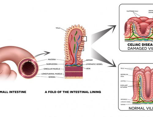 What is refractory Celiac Disease?